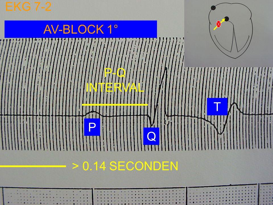 SINO-ATRIALE BLOCK PAUZE NA VENTRICULAIRE EXTRASYSTOLE