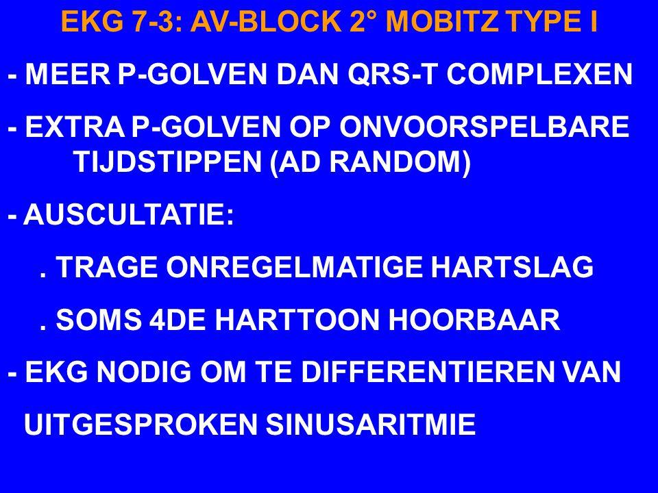 PPPPPP' TTTT AV-BLOCK 2° MOBITZ TYPE I EKG 7-3