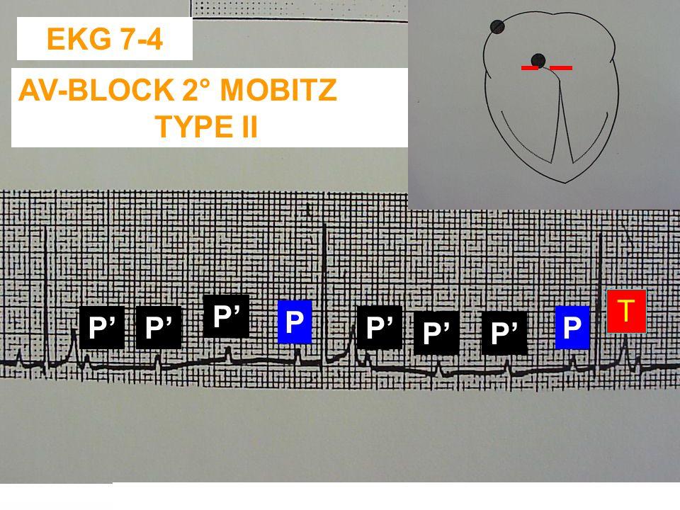 EKG 7-3: AV-BLOCK 2° MOBITZ TYPE I - MEER P-GOLVEN DAN QRS-T COMPLEXEN - EXTRA P-GOLVEN OP ONVOORSPELBARE TIJDSTIPPEN (AD RANDOM) - AUSCULTATIE:. TRAG