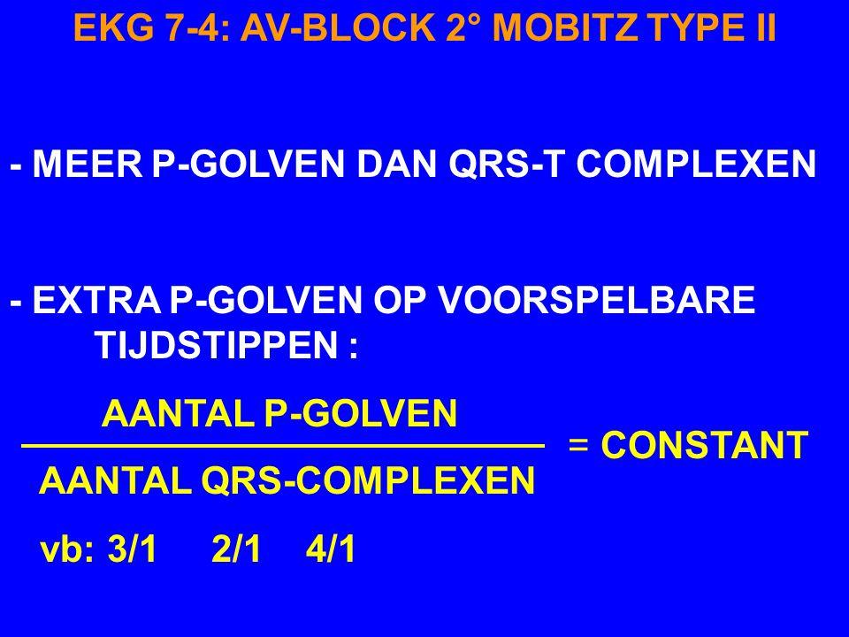 P' P P T EKG 7-4 AV-BLOCK 2° MOBITZ TYPE II