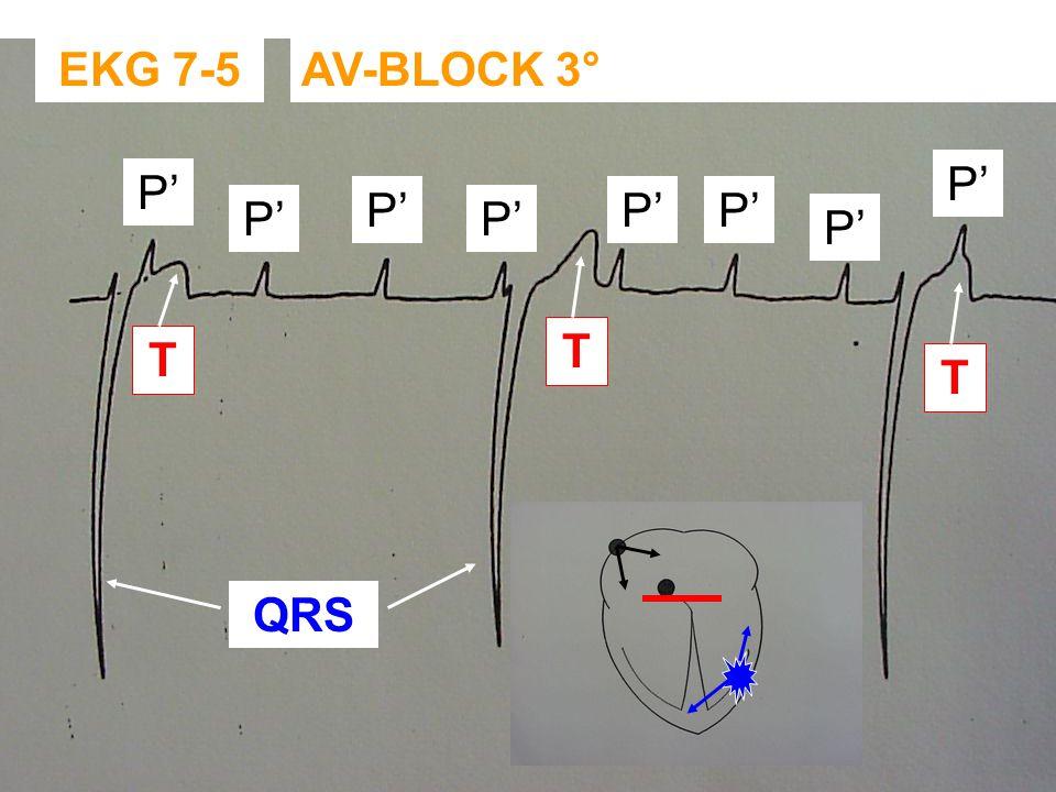 EKG 7-4: AV-BLOCK 2° MOBITZ TYPE II - AUSCULTATIE:. ZEER TRAGE REGELMATIGE HARTSLAG. SOMS 4DE HARTTOON HOORBAAR (CONTRACTIE ATRIA) - EKG NODIG OM TE D