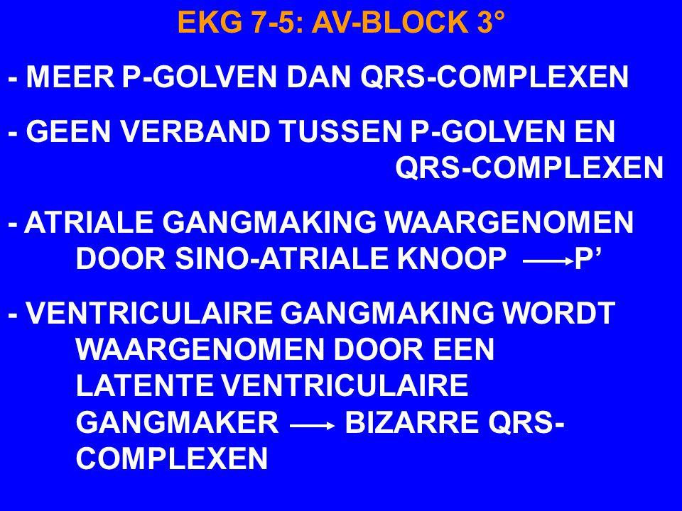 EKG 7-5AV-BLOCK 3° P' T T T QRS