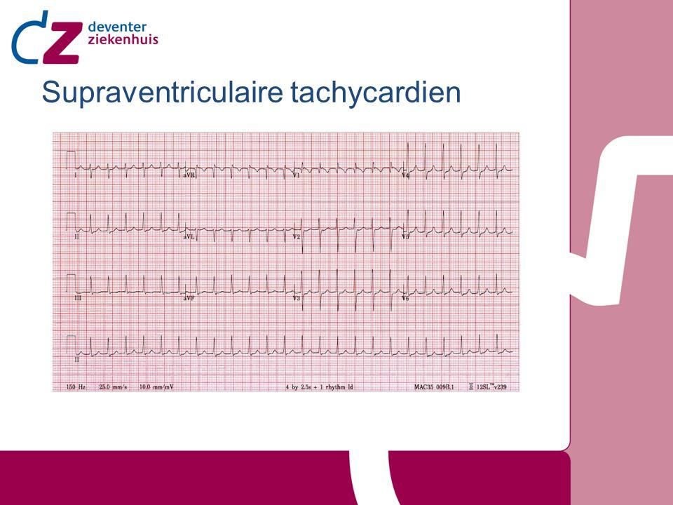 Inhoud Inleiding Atriale tachycardien –Sinustachycardie –Atriumtachycardie –Atriumfibrilleren –Atriumflutter Nodale tachycardien –AVNRT –AVRT/Cirkeltachycardie