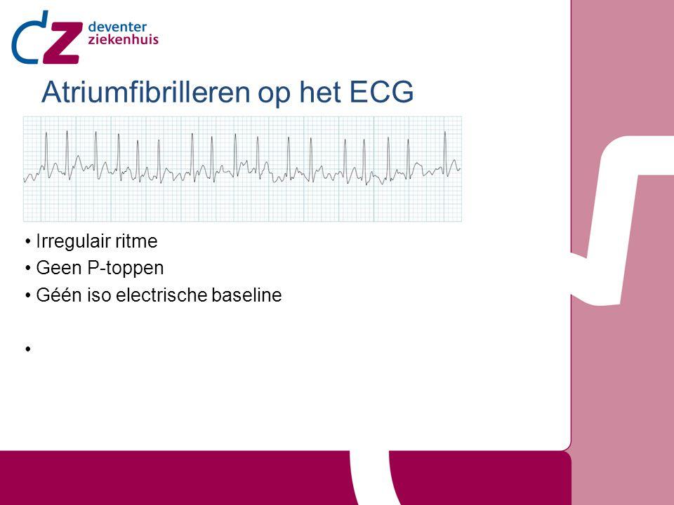 Atriumfibrilleren op het ECG Irregulair ritme Geen P-toppen Géén iso electrische baseline
