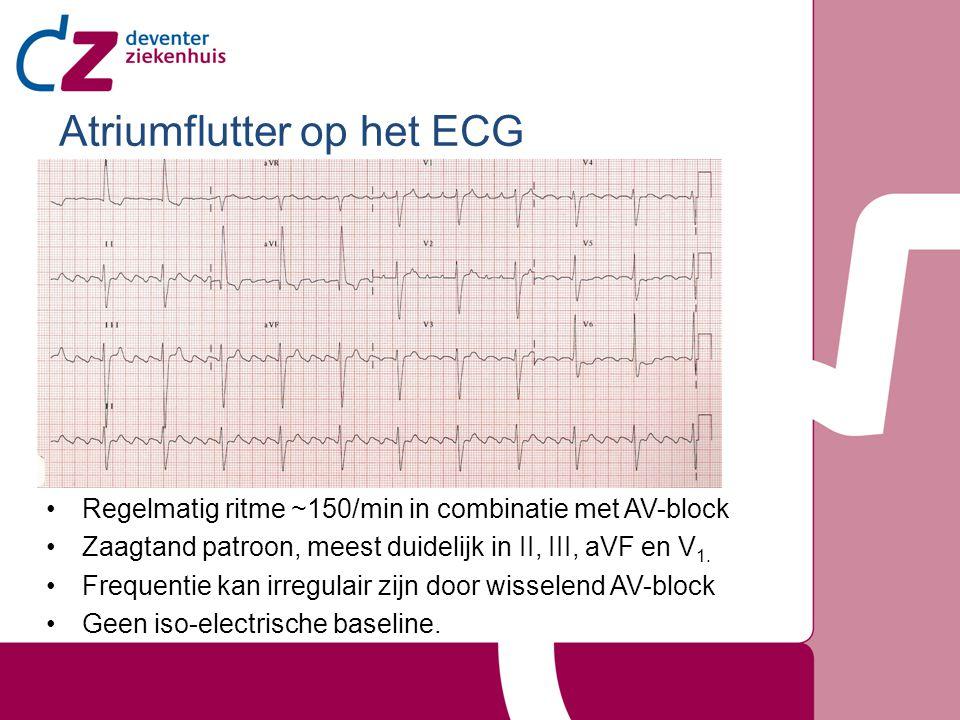 Atriumflutter op het ECG Regelmatig ritme ~150/min in combinatie met AV-block Zaagtand patroon, meest duidelijk in II, III, aVF en V 1. Frequentie kan
