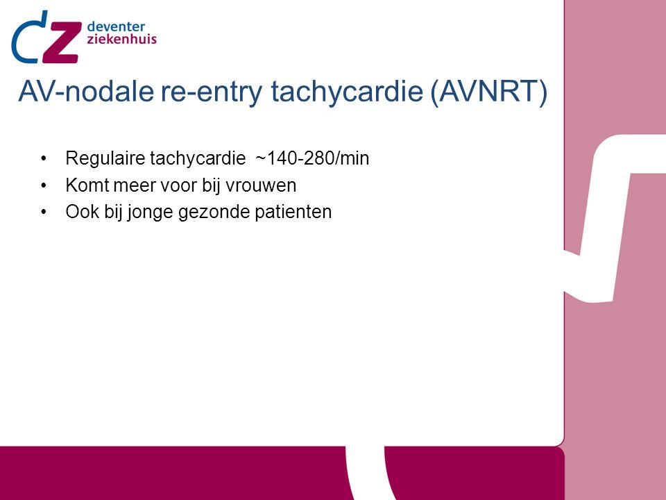 Regulaire tachycardie ~140-280/min Komt meer voor bij vrouwen Ook bij jonge gezonde patienten