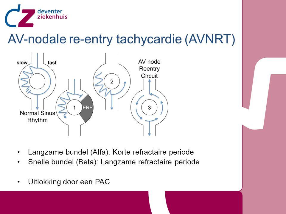 AV-nodale re-entry tachycardie (AVNRT) Langzame bundel (Alfa): Korte refractaire periode Snelle bundel (Beta): Langzame refractaire periode Uitlokking