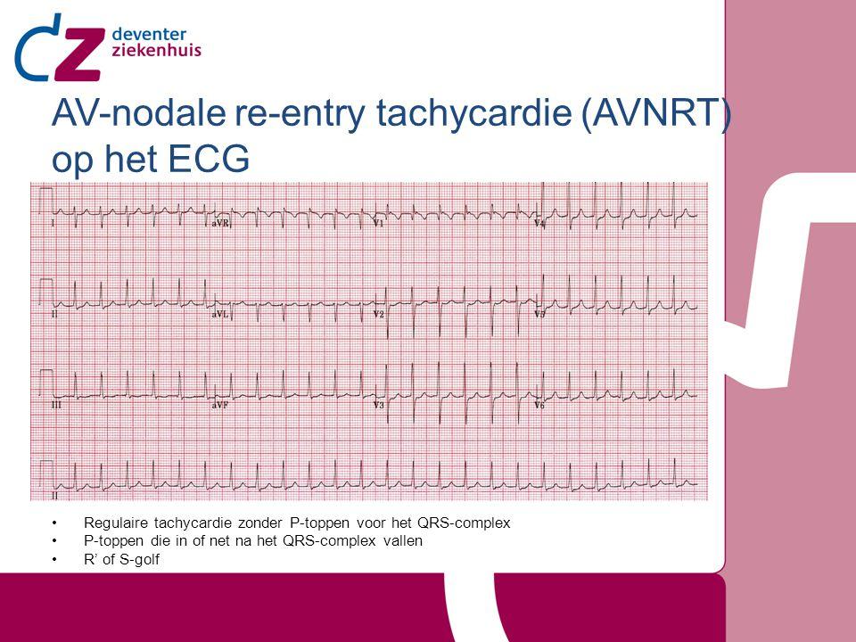 AV-nodale re-entry tachycardie (AVNRT) op het ECG Regulaire tachycardie zonder P-toppen voor het QRS-complex P-toppen die in of net na het QRS-complex