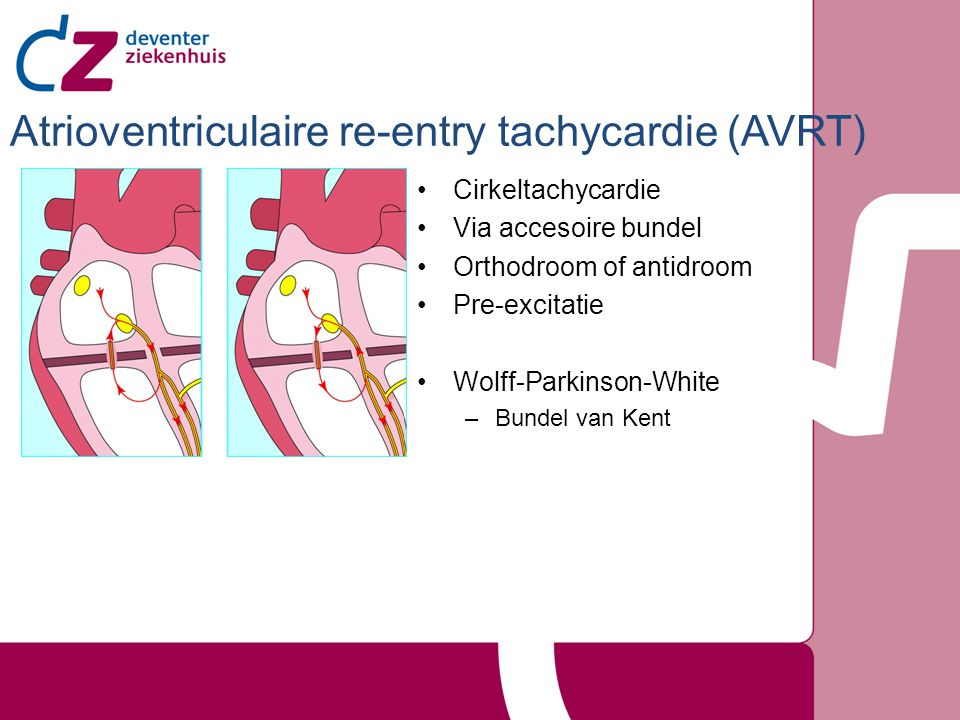 Cirkeltachycardie Via accesoire bundel Orthodroom of antidroom Pre-excitatie Wolff-Parkinson-White –Bundel van Kent