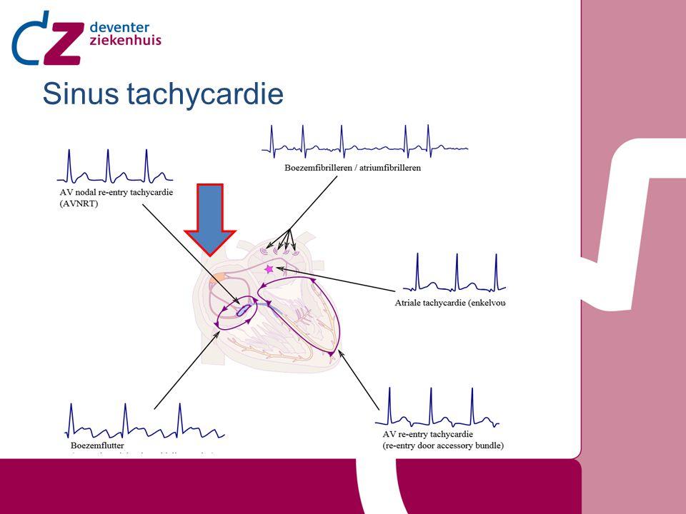 Tachycardie door snel vuren sinusknoop.