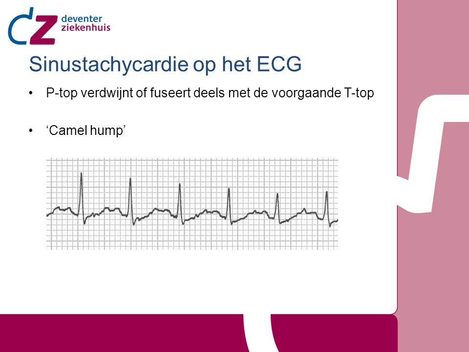 Sinustachycardie op het ECG P-top verdwijnt of fuseert deels met de voorgaande T-top 'Camel hump'