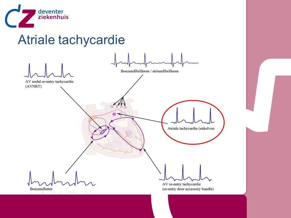 Meestal enkelvoudige focus, meerdere ook mogelijk Mechanisme: re-entry, triggered activity of increased automaticity Oorzaken oa: Digoxine intoxicatie, atriale leasie, overmatige catecholamines, congenitale afwijkingen, idiopatisch Paroximaal of persisterend Zelden persisterend, kan resulteren in tachycardie induces cardiomyopathy