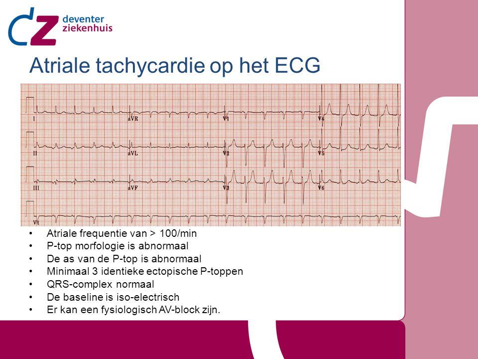 Atriale tachycardie op het ECG Atriale frequentie van > 100/min P-top morfologie is abnormaal De as van de P-top is abnormaal Minimaal 3 identieke ect
