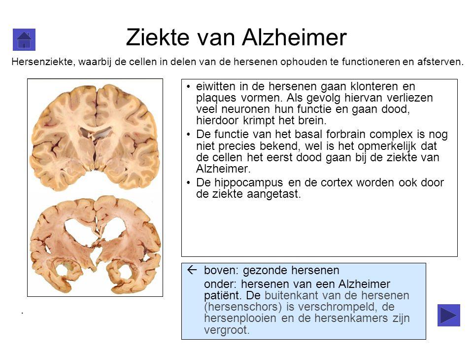 Ziekte van Alzheimer eiwitten in de hersenen gaan klonteren en plaques vormen. Als gevolg hiervan verliezen veel neuronen hun functie en gaan dood, hi