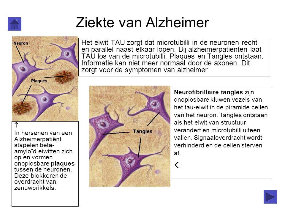 Ziekte van Alzheimer  In hersenen van een Alzheimerpatiënt stapelen beta- amyloïd eiwitten zich op en vormen onoplosbare plaques tussen de neuronen.