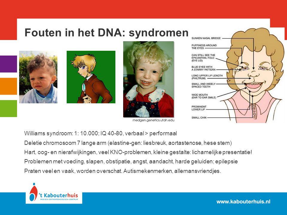 Fouten in het DNA: syndromen Williams syndroom: 1: 10.000; IQ 40-80, verbaal > performaal Deletie chromosoom 7 lange arm (elastine-gen: liesbreuk, aor