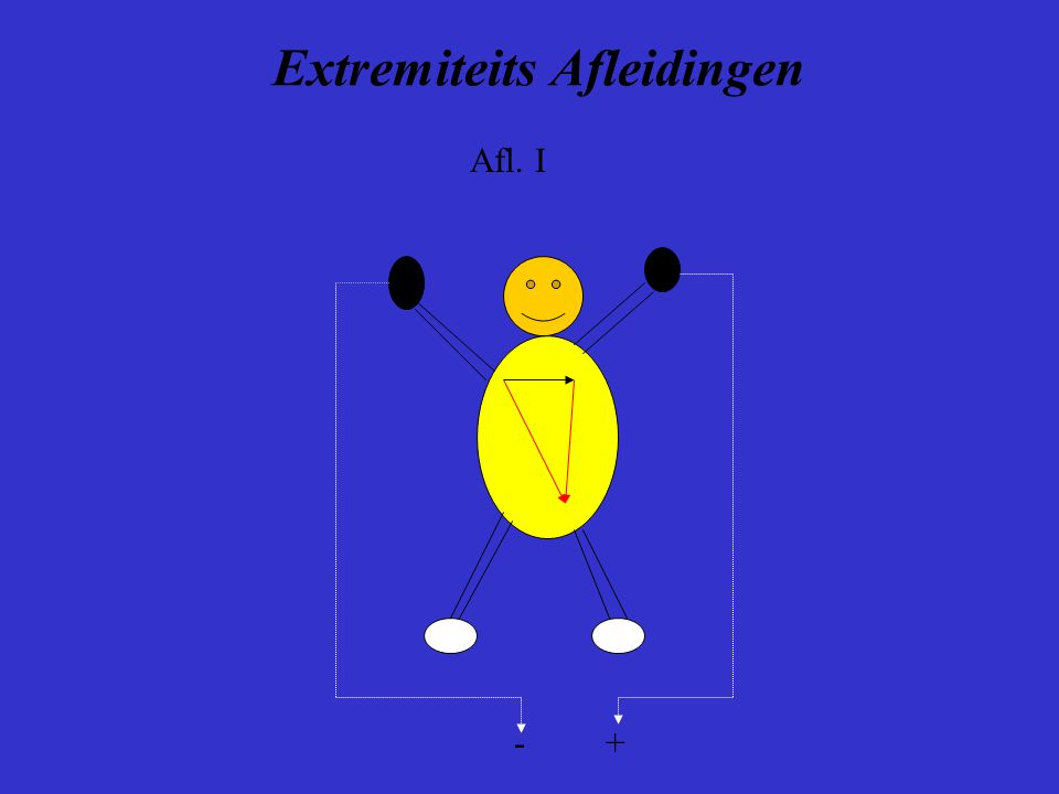 Extremiteits Afleidingen - + Afl. I