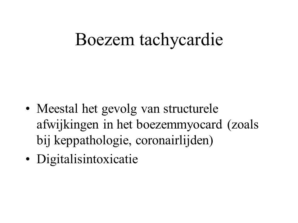 Boezem tachycardie Meestal het gevolg van structurele afwijkingen in het boezemmyocard (zoals bij keppathologie, coronairlijden) Digitalisintoxicatie