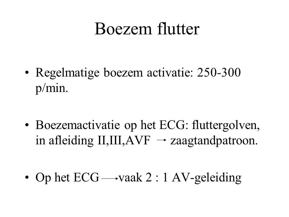 Boezem flutter Regelmatige boezem activatie: 250-300 p/min.