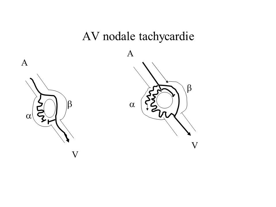 AV nodale tachycardie A V   A V  