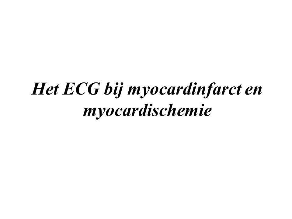 Het ECG bij myocardinfarct en myocardischemie