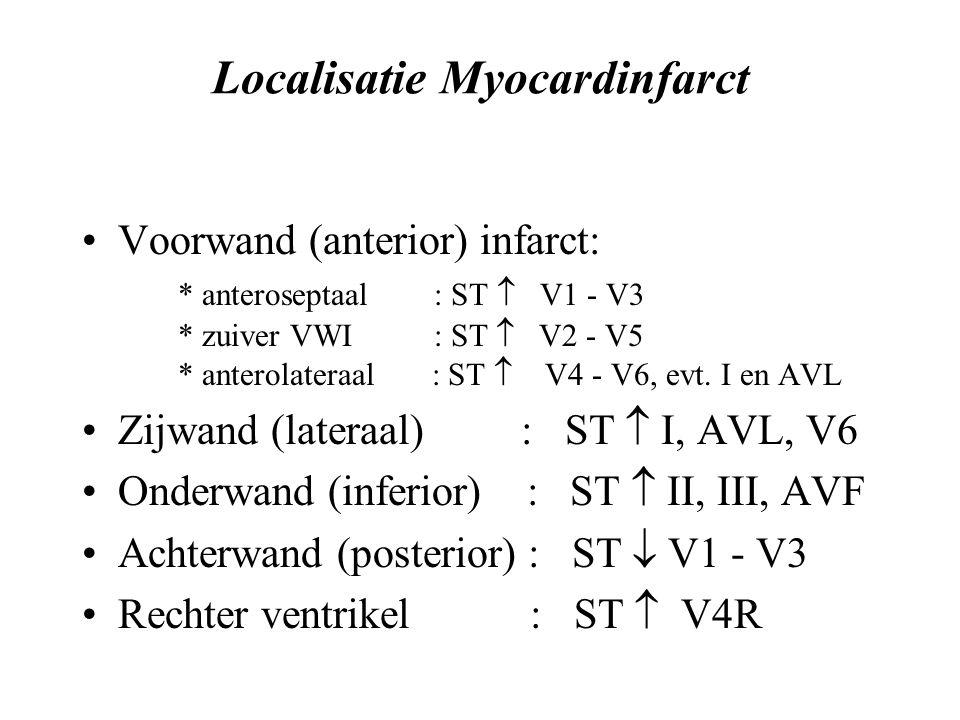 Localisatie Myocardinfarct Voorwand (anterior) infarct: * anteroseptaal : ST  V1 - V3 * zuiver VWI : ST  V2 - V5 * anterolateraal : ST  V4 - V6, evt.