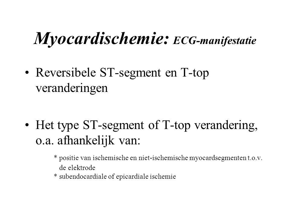 Myocardischemie: ECG-manifestatie Reversibele ST-segment en T-top veranderingen Het type ST-segment of T-top verandering, o.a.
