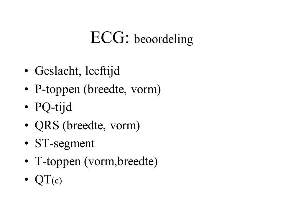 ECG: beoordeling Geslacht, leeftijd P-toppen (breedte, vorm) PQ-tijd QRS (breedte, vorm) ST-segment T-toppen (vorm,breedte) QT (c)