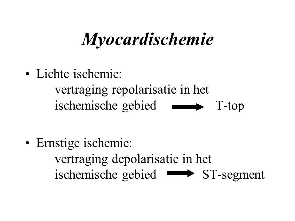 Myocardischemie Lichte ischemie: vertraging repolarisatie in het ischemische gebied T-top Ernstige ischemie: vertraging depolarisatie in het ischemische gebiedST-segment