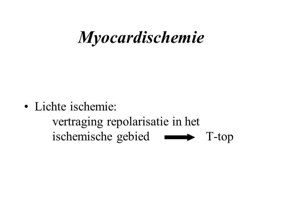 Myocardischemie Lichte ischemie: vertraging repolarisatie in het ischemische gebied T-top