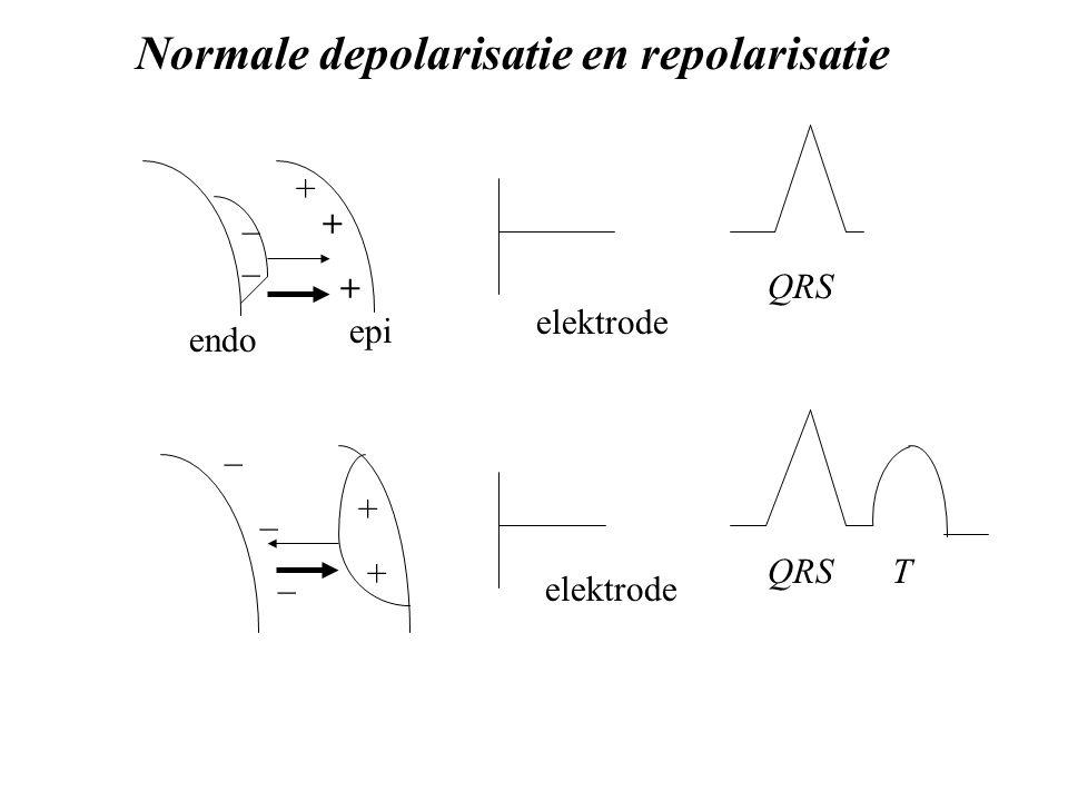 endo epi + + _ elektrode Normale depolarisatie en repolarisatie + _ QRS T