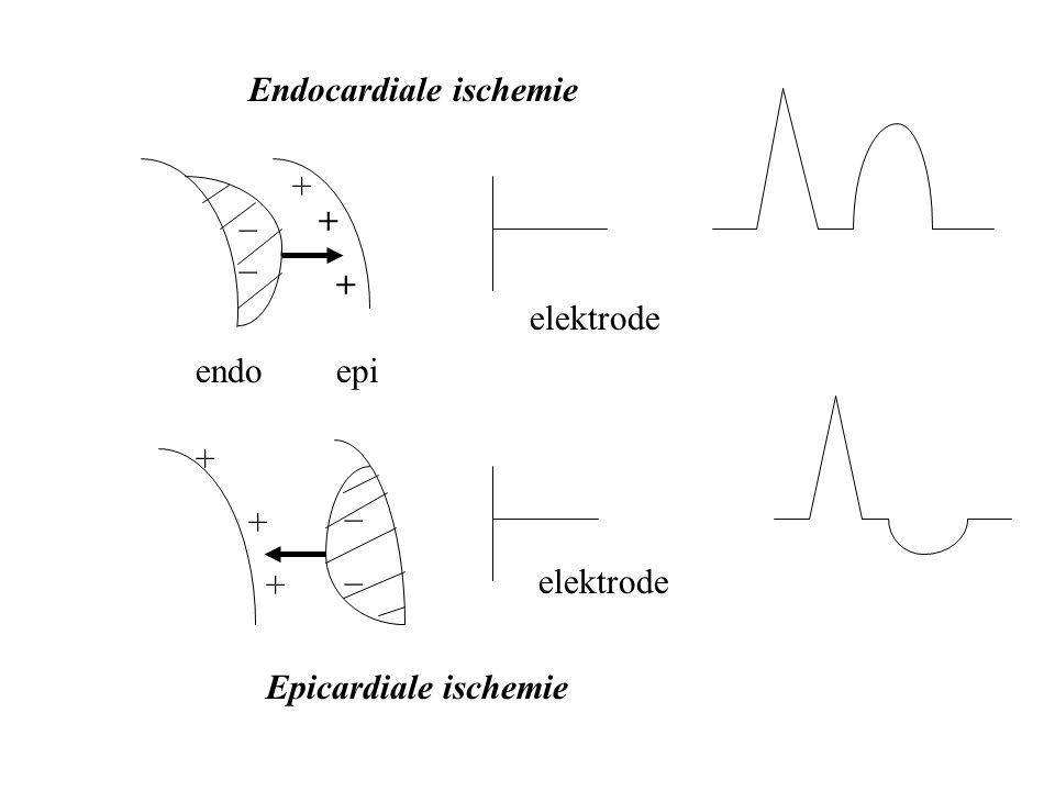 endoepi + + _ elektrode ____ + Epicardiale ischemie Endocardiale ischemie