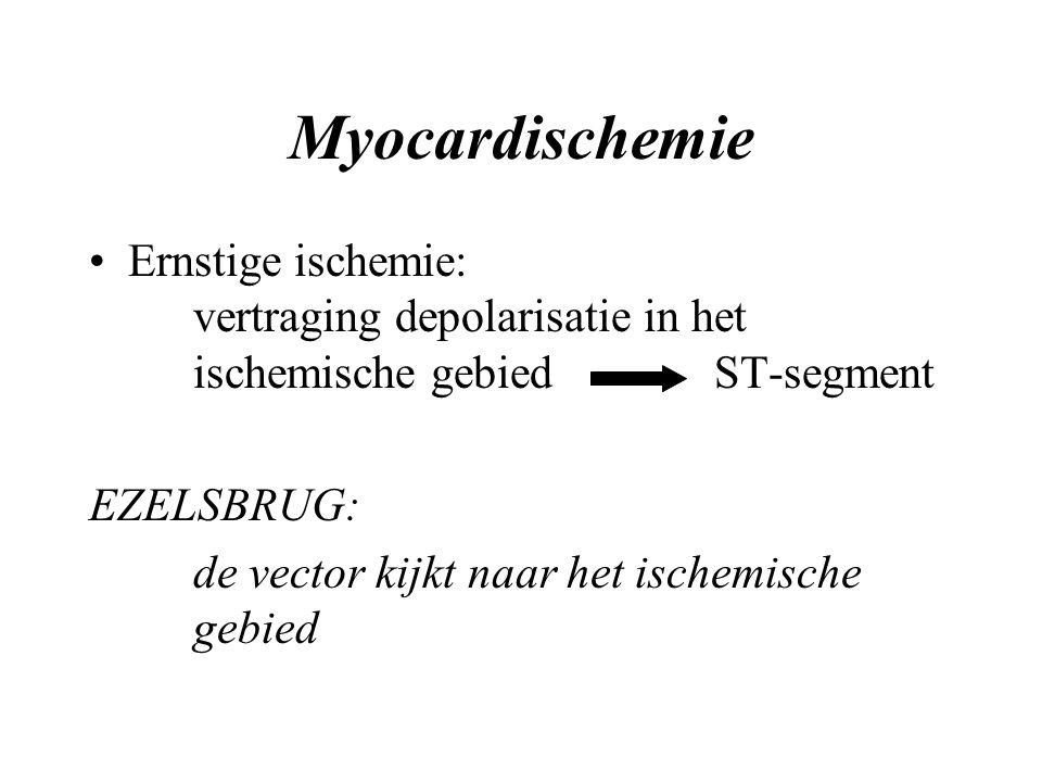 Myocardischemie Ernstige ischemie: vertraging depolarisatie in het ischemische gebiedST-segment EZELSBRUG: de vector kijkt naar het ischemische gebied