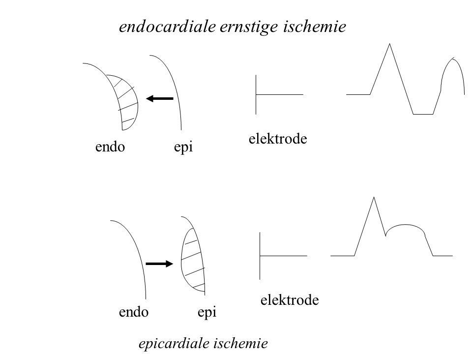 endoepi elektrode endocardiale ernstige ischemie endoepi elektrode epicardiale ischemie
