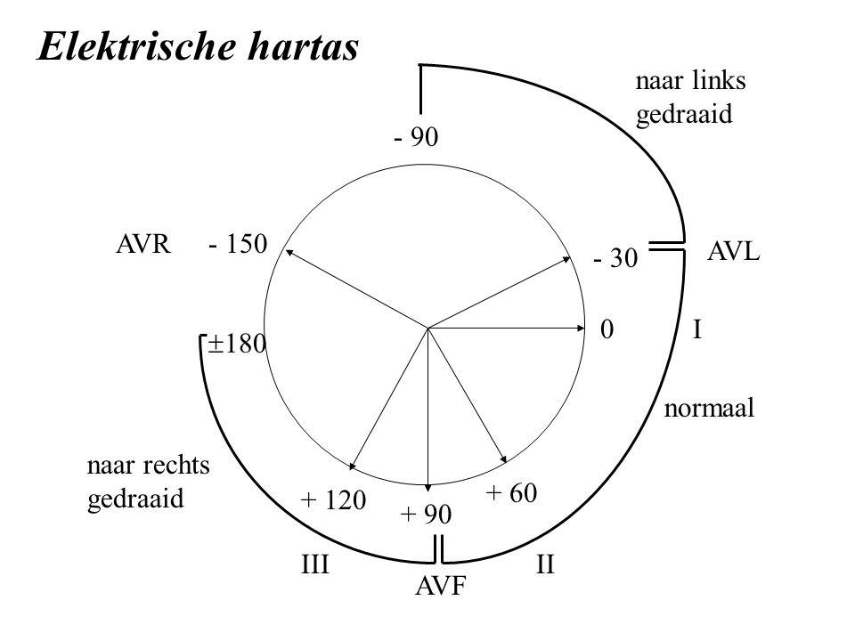 + 90 + 60 0 - 30 + 120 - 150 normaal AVF II naar rechts gedraaid naar links gedraaid - 90 III I AVR AVL Elektrische hartas  180