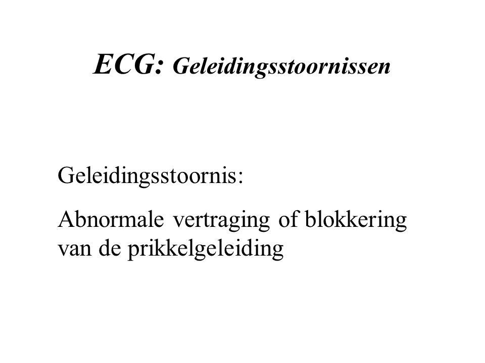 ECG: Geleidingsstoornissen Geleidingsstoornis: Abnormale vertraging of blokkering van de prikkelgeleiding