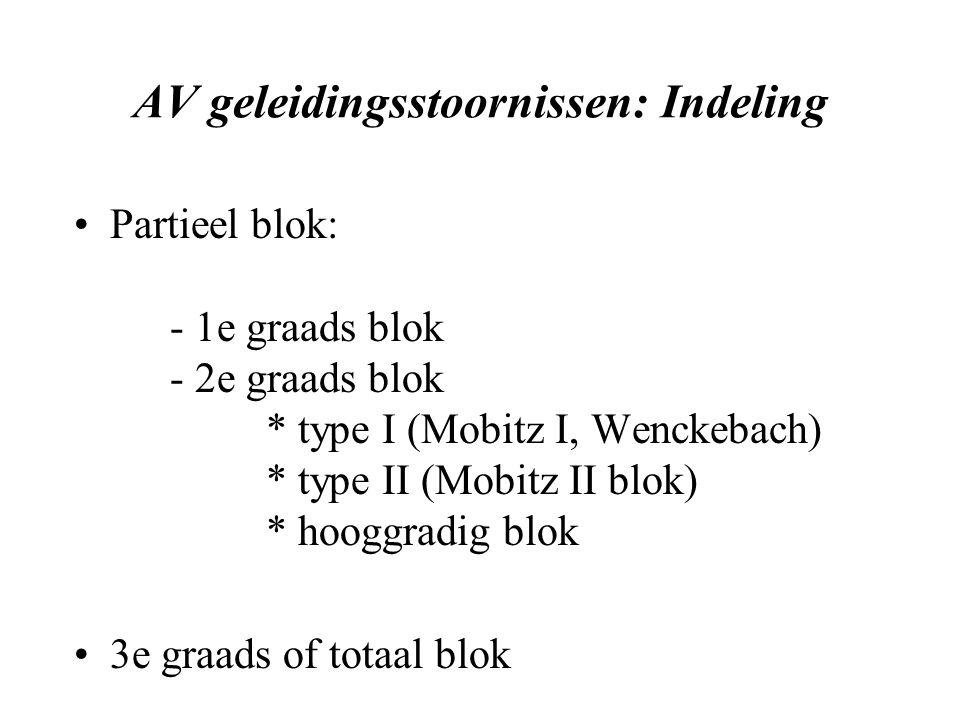 AV geleidingsstoornissen: Indeling Partieel blok: - 1e graads blok - 2e graads blok * type I (Mobitz I, Wenckebach) * type II (Mobitz II blok) * hooggradig blok 3e graads of totaal blok