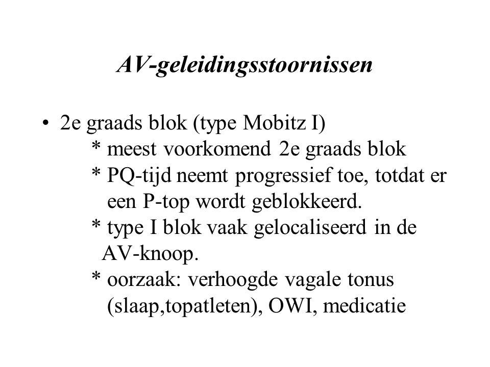 AV-geleidingsstoornissen 2e graads blok (type Mobitz I) * meest voorkomend 2e graads blok * PQ-tijd neemt progressief toe, totdat er een P-top wordt geblokkeerd.