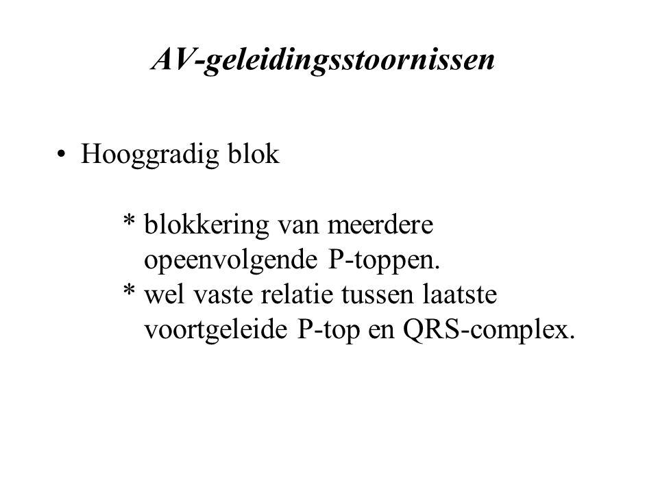 AV-geleidingsstoornissen Hooggradig blok * blokkering van meerdere opeenvolgende P-toppen.