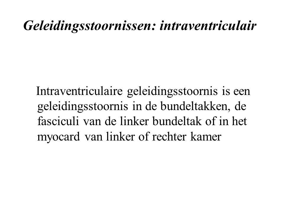 Geleidingsstoornissen: intraventriculair Intraventriculaire geleidingsstoornis is een geleidingsstoornis in de bundeltakken, de fasciculi van de linker bundeltak of in het myocard van linker of rechter kamer
