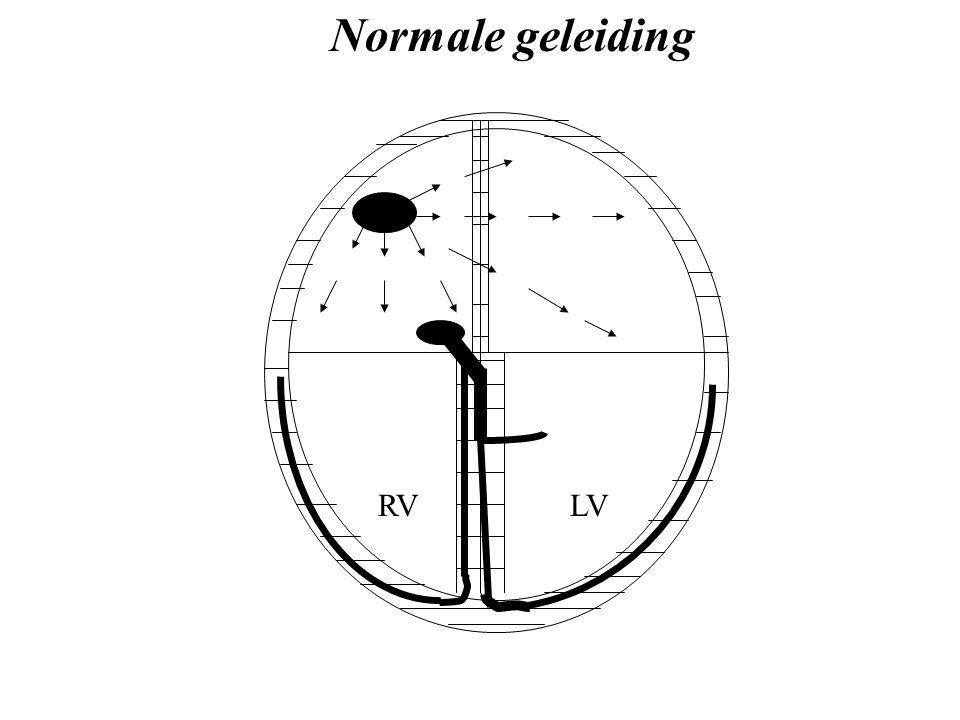 RVLV Normale geleiding