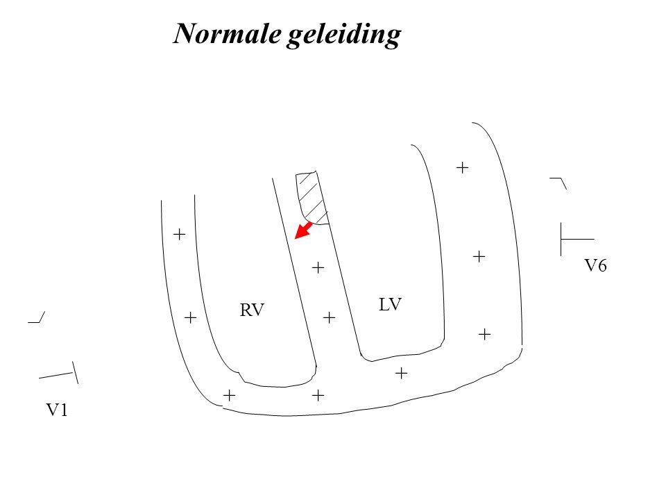 LV RV V1 V6 Normale geleiding + + ++ + + + + + +