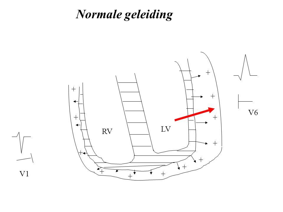 LV RV V1 V6 + + + + + + + + + + + + Normale geleiding