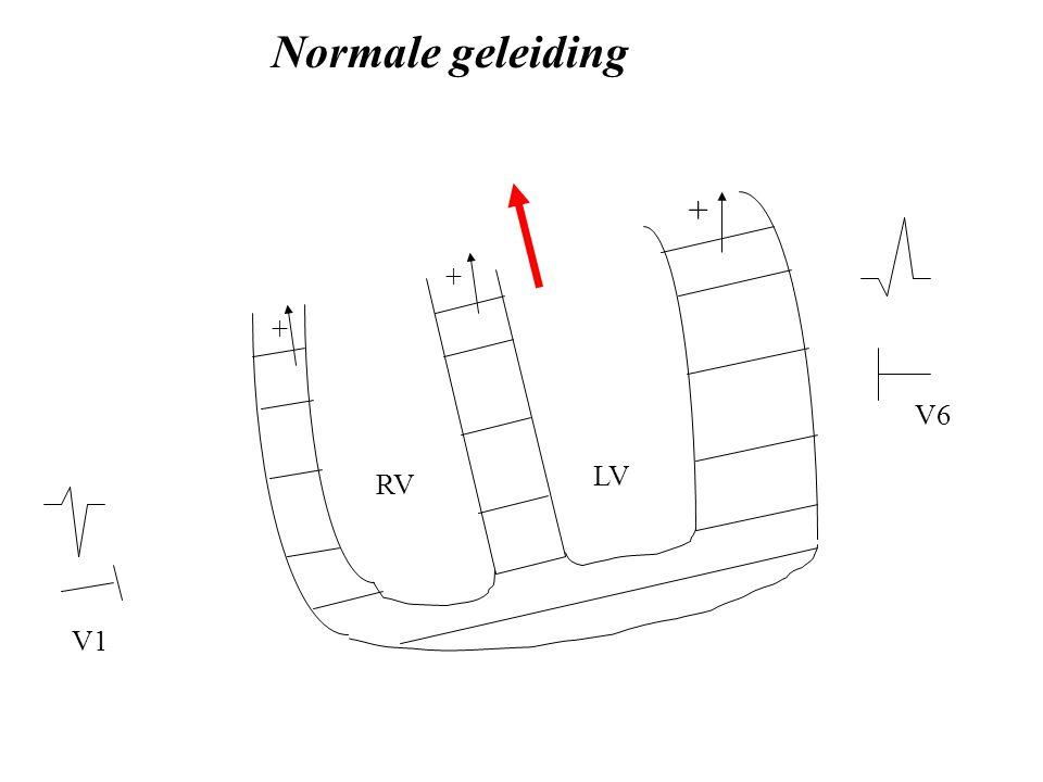 LV RV V1 V6 Normale geleiding + + +