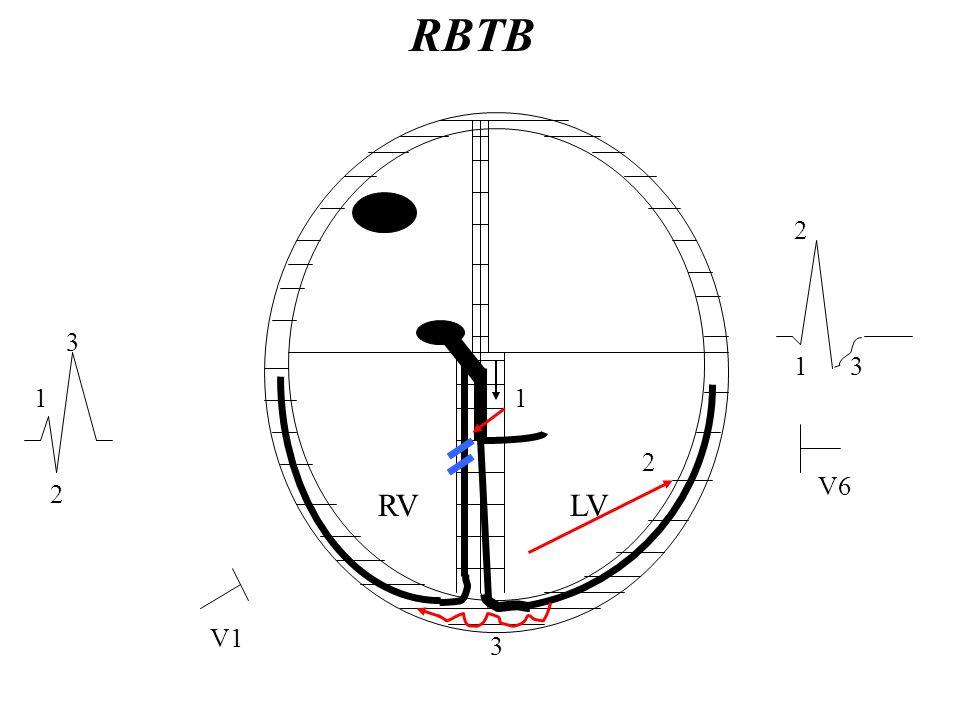 RVLV V1 V6 3 2 1 RBTB 3 1 2 3 2 1