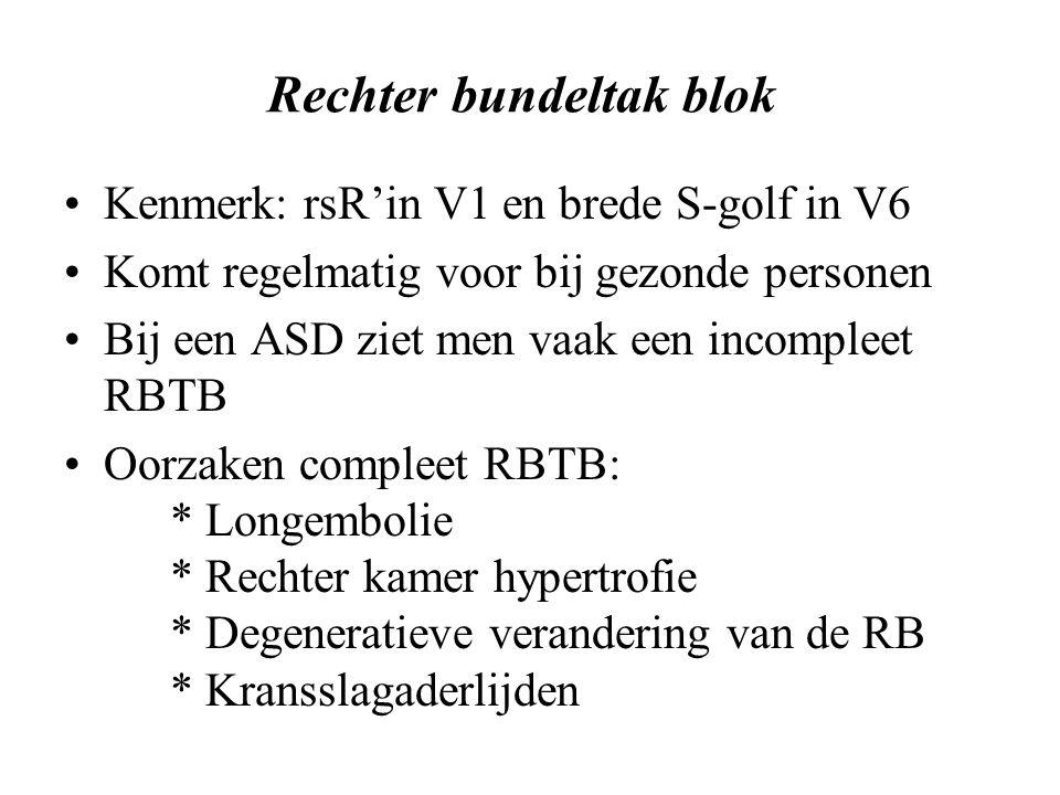 Rechter bundeltak blok Kenmerk: rsR'in V1 en brede S-golf in V6 Komt regelmatig voor bij gezonde personen Bij een ASD ziet men vaak een incompleet RBTB Oorzaken compleet RBTB: * Longembolie * Rechter kamer hypertrofie * Degeneratieve verandering van de RB * Kransslagaderlijden
