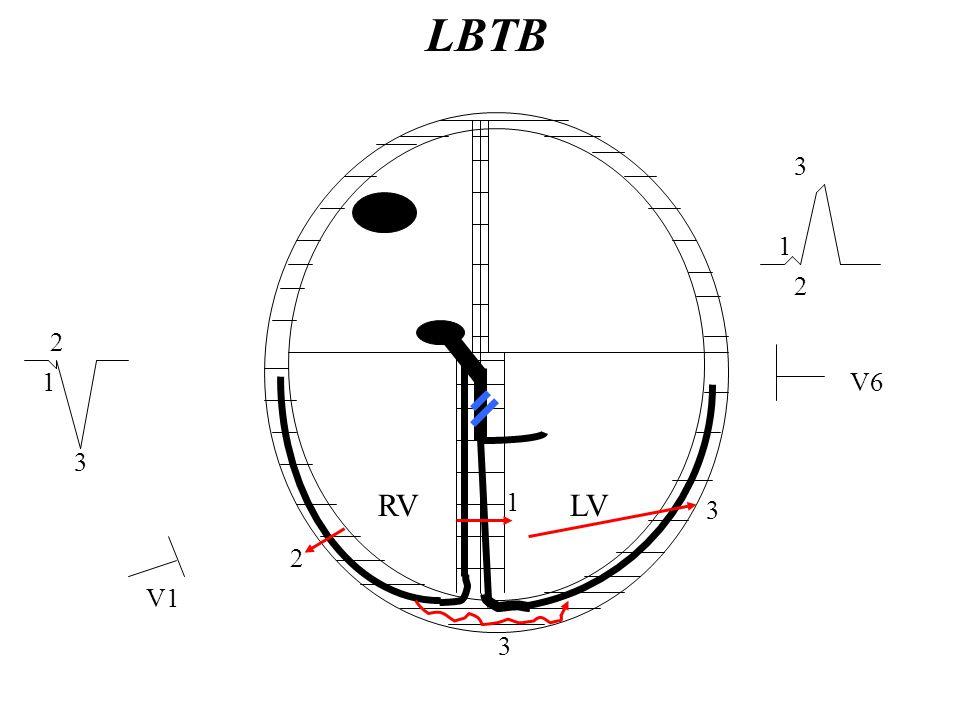 RVLV 1 2 3 3 V1 V61 2 3 1 2 3 LBTB