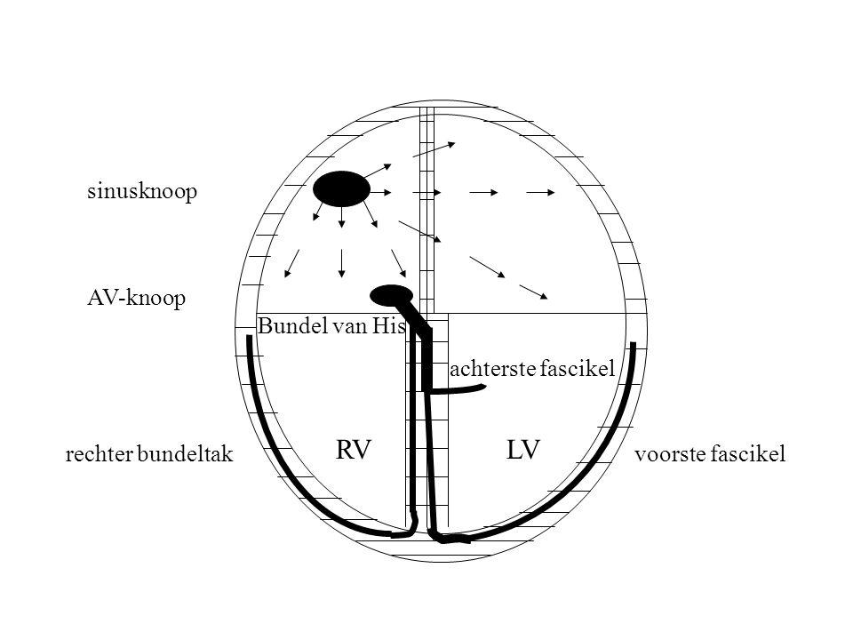 RVLV sinusknoop AV-knoop rechter bundeltakvoorste fascikel achterste fascikel Bundel van His