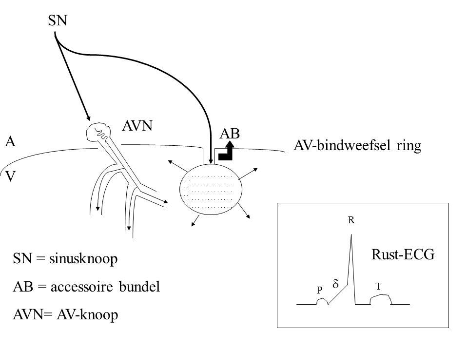 A V AVN AV-bindweefsel ring AB SN = sinusknoop AB = accessoire bundel AVN= AV-knoop............................................