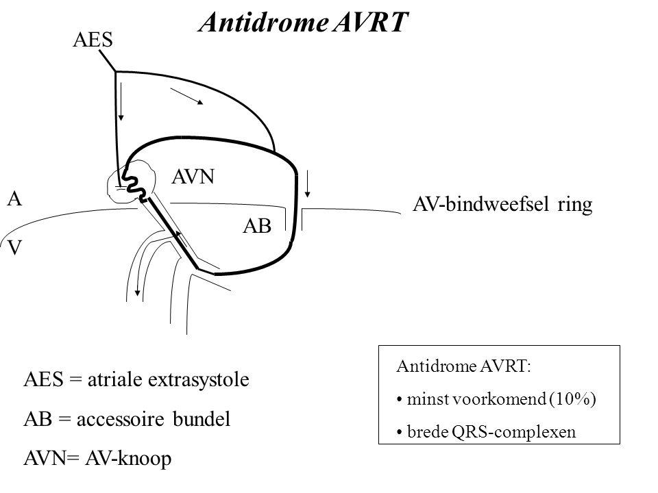 A V AVN AES AV-bindweefsel ring AB AES = atriale extrasystole AB = accessoire bundel AVN= AV-knoop Antidrome AVRT Antidrome AVRT: minst voorkomend (10%) brede QRS-complexen